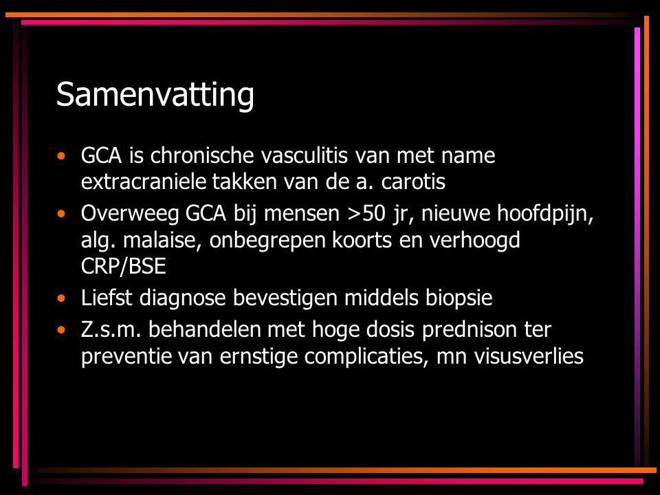 Samenvatting GCA is chronische vasculitis van met name extracraniele takken van de a. carotis.
