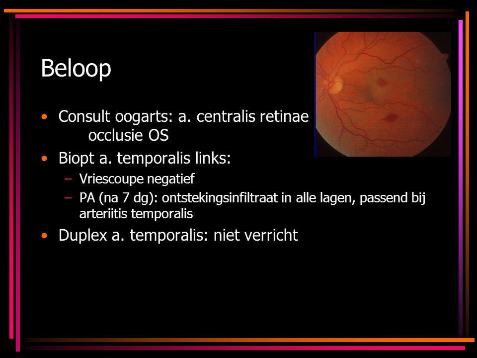 Beloop Consult oogarts: a. centralis retinae occlusie OS