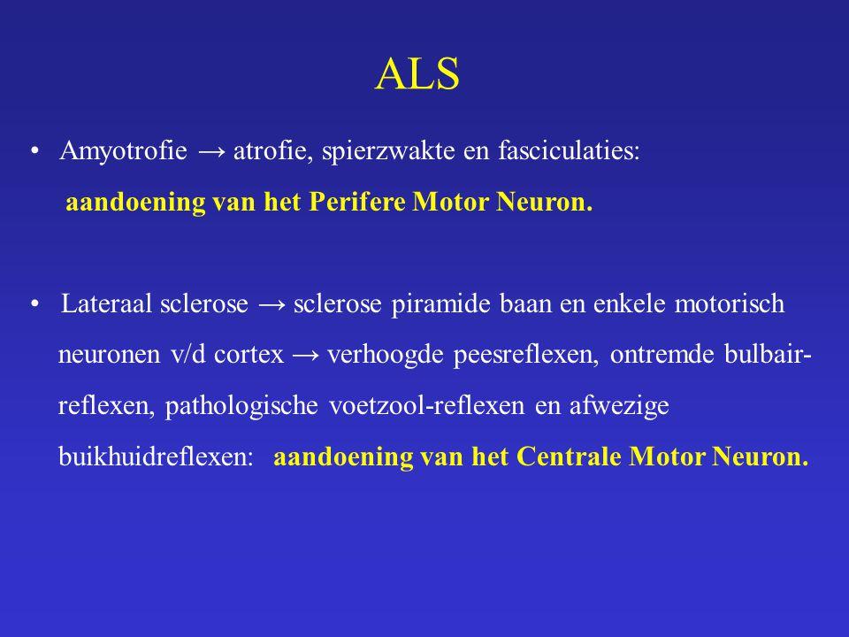 ALS Amyotrofie → atrofie, spierzwakte en fasciculaties: