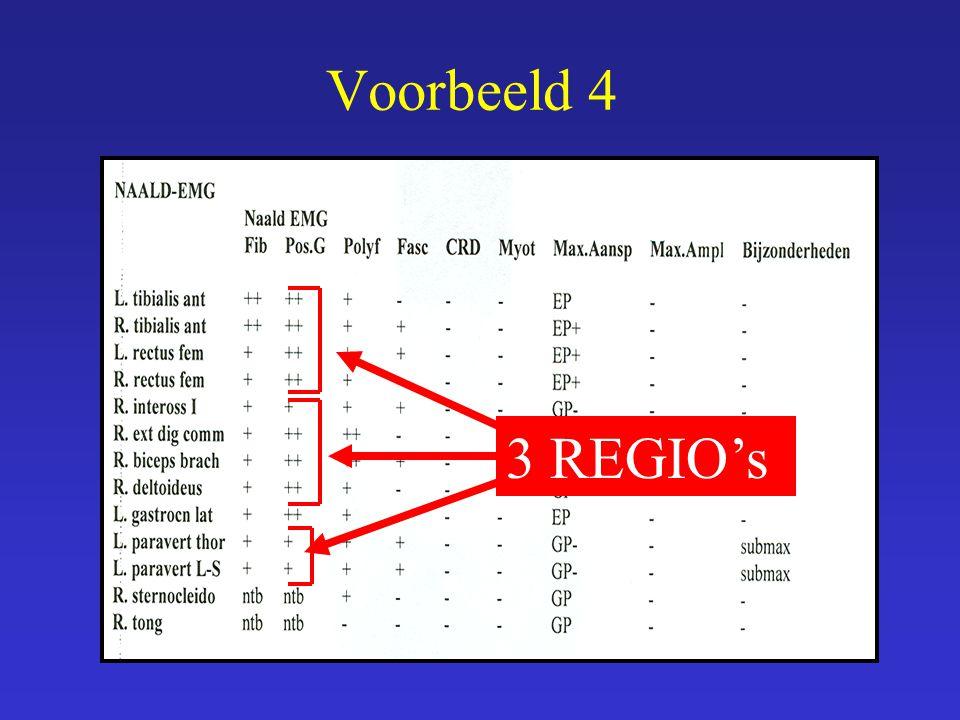Voorbeeld 4 3 REGIO's