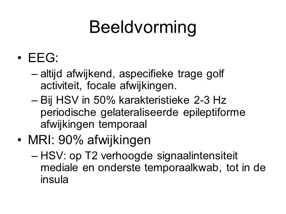Beeldvorming EEG: MRI: 90% afwijkingen