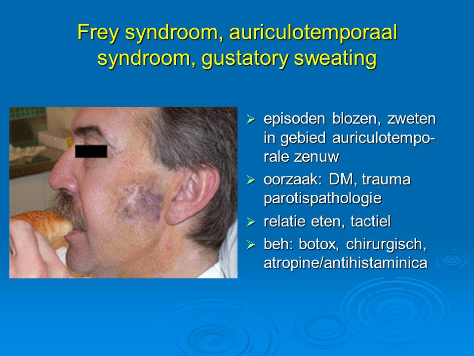 Frey syndroom, auriculotemporaal syndroom, gustatory sweating