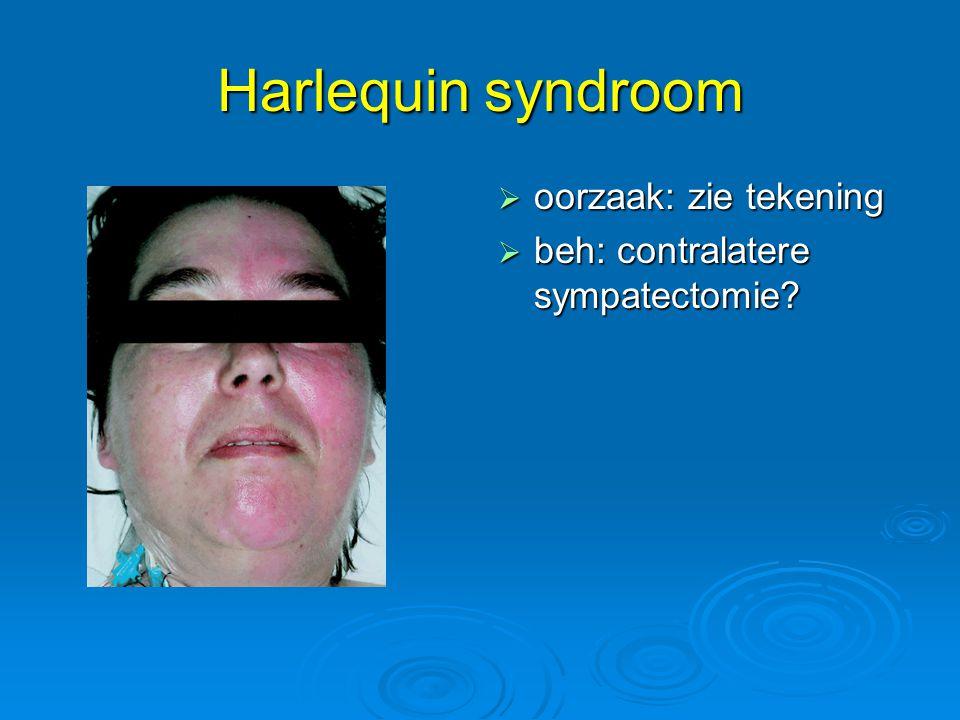 Harlequin syndroom oorzaak: zie tekening