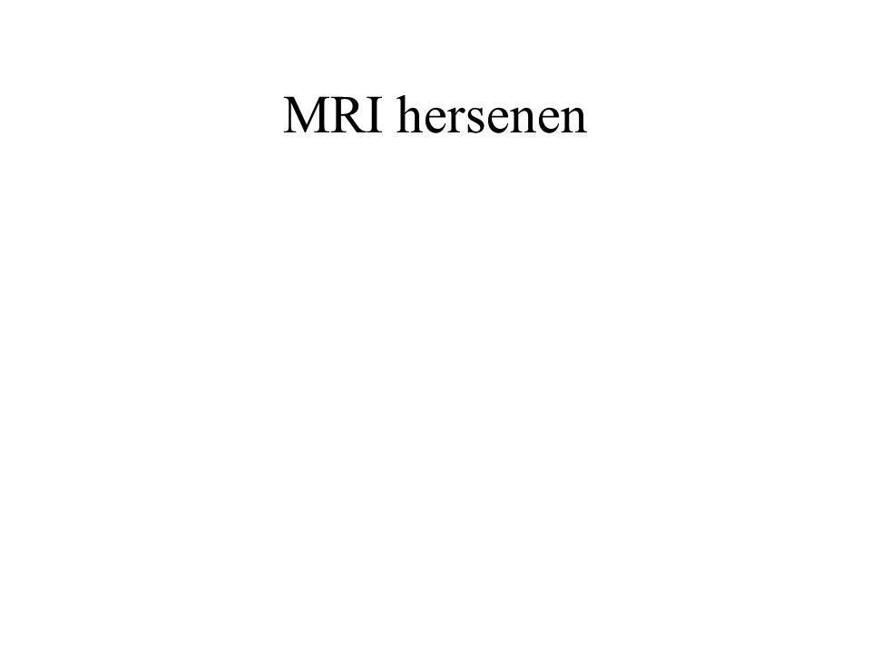 MRI hersenen