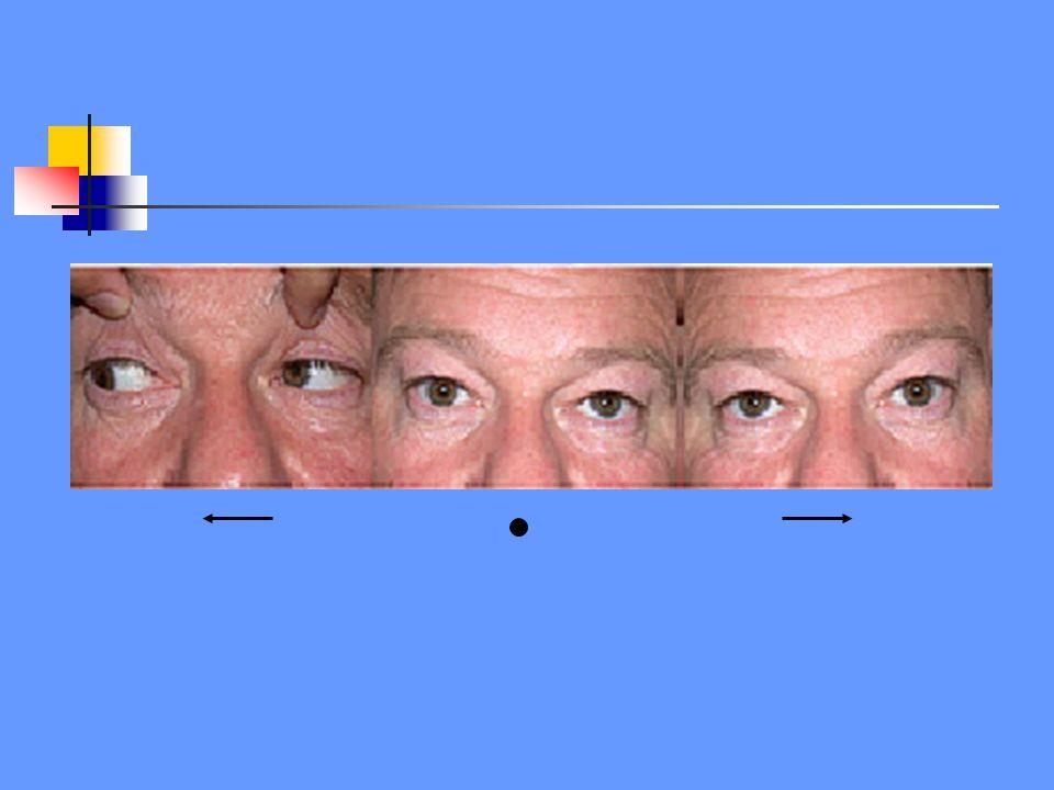 Rechte oogstand met blikparese naar links