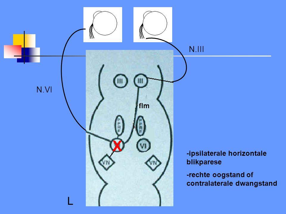 X L N.III N.VI flm -ipsilaterale horizontale blikparese