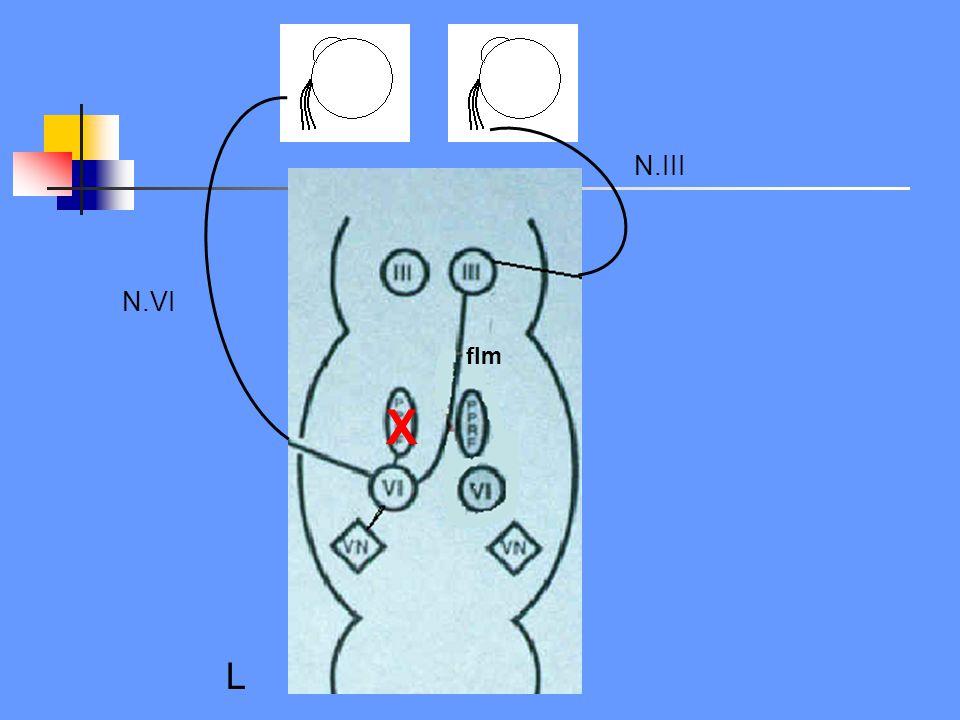 N.III N.VI. flm. X. Gestoorde saccaden (en blikparese), volgen gaat wel goed. Komt zeer zelden geisoleerd voor.