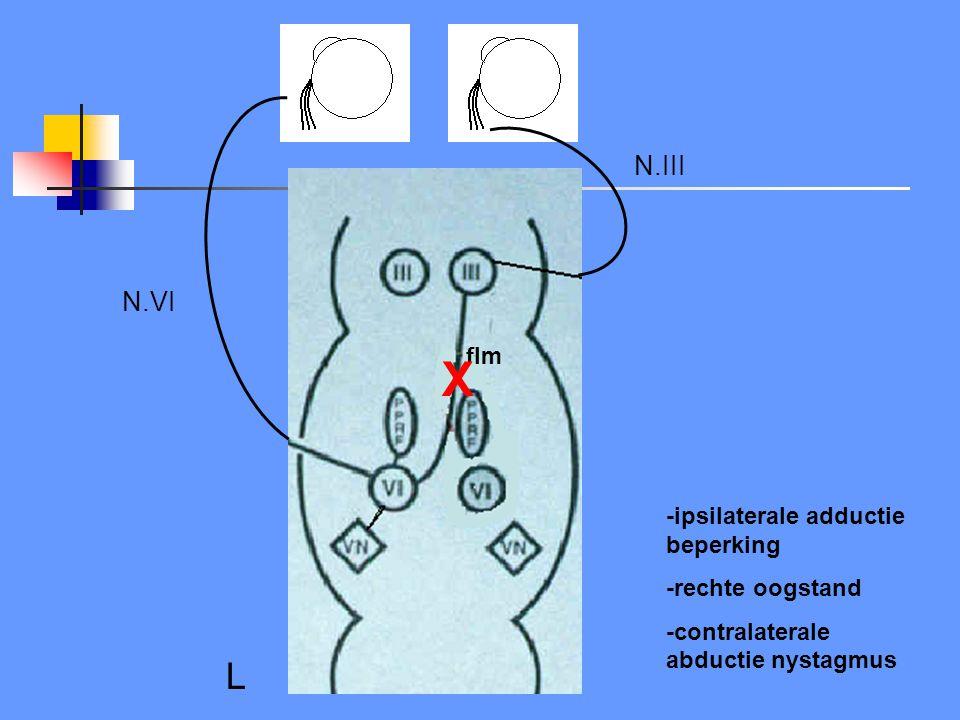 X L N.III N.VI flm -ipsilaterale adductie beperking -rechte oogstand