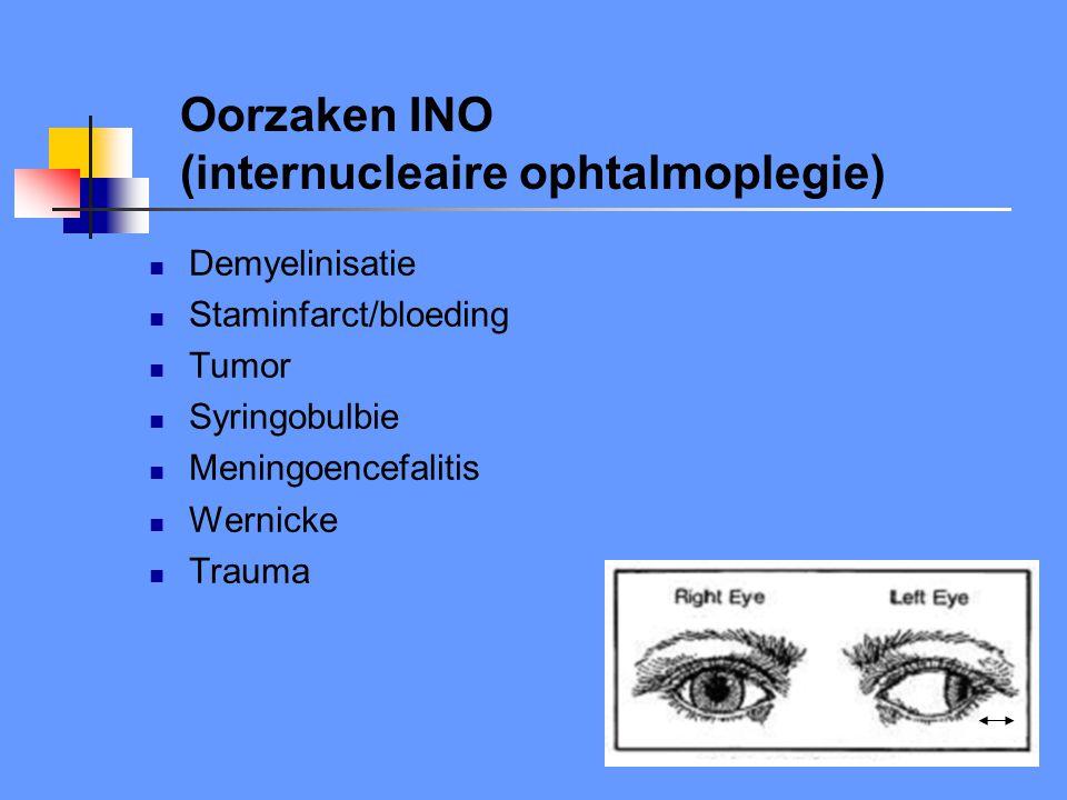 Oorzaken INO (internucleaire ophtalmoplegie)