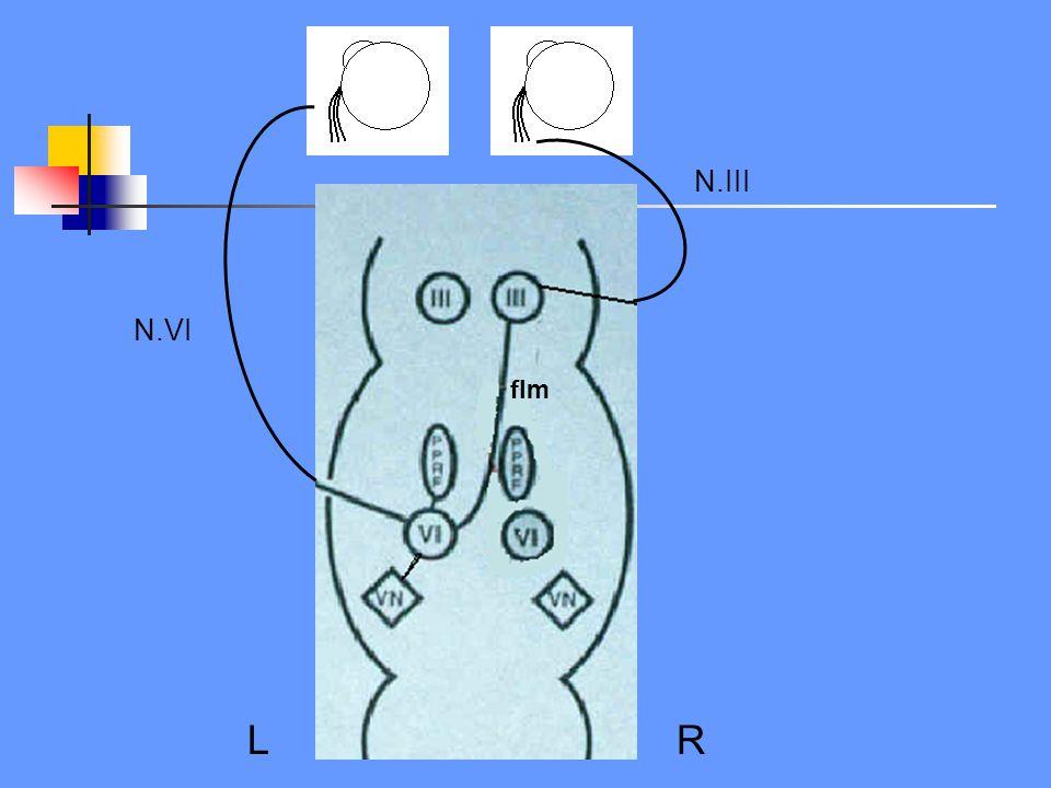 L R N.III N.VI flm Vereenvoudigd schema