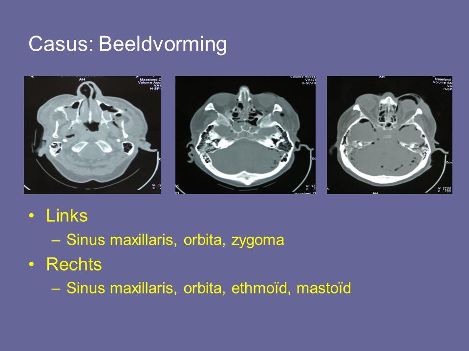 Casus: Beeldvorming Links Rechts Sinus maxillaris, orbita, zygoma