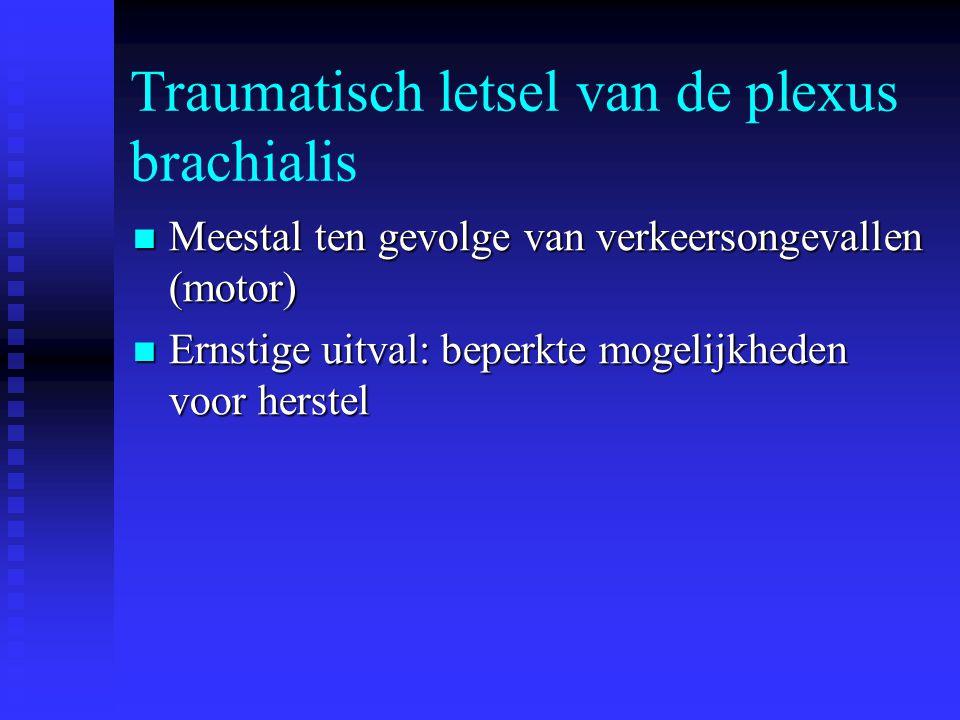 Traumatisch letsel van de plexus brachialis
