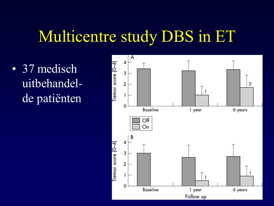 Multicentre study DBS in ET