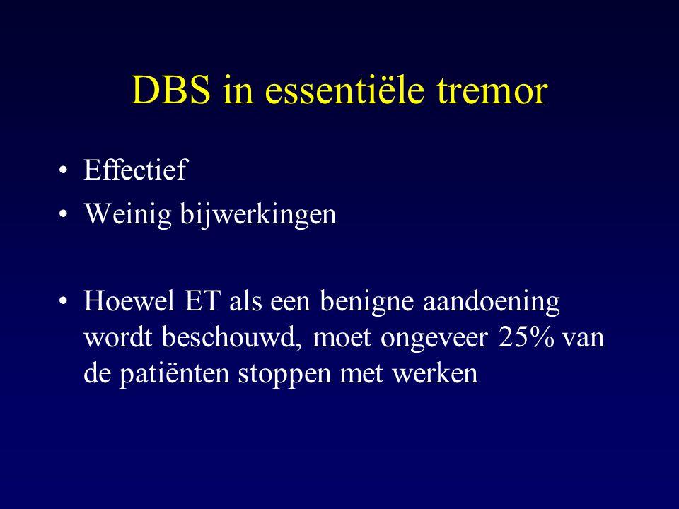 DBS in essentiële tremor