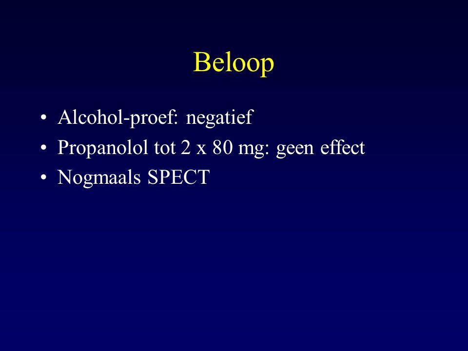 Beloop Alcohol-proef: negatief Propanolol tot 2 x 80 mg: geen effect