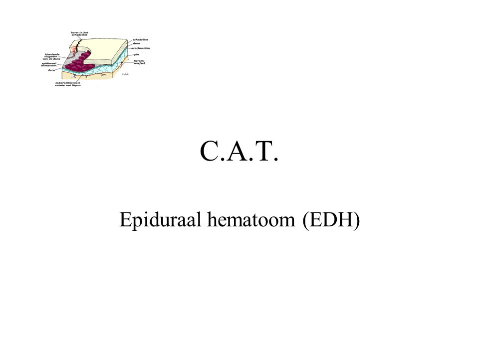 Epiduraal hematoom (EDH)