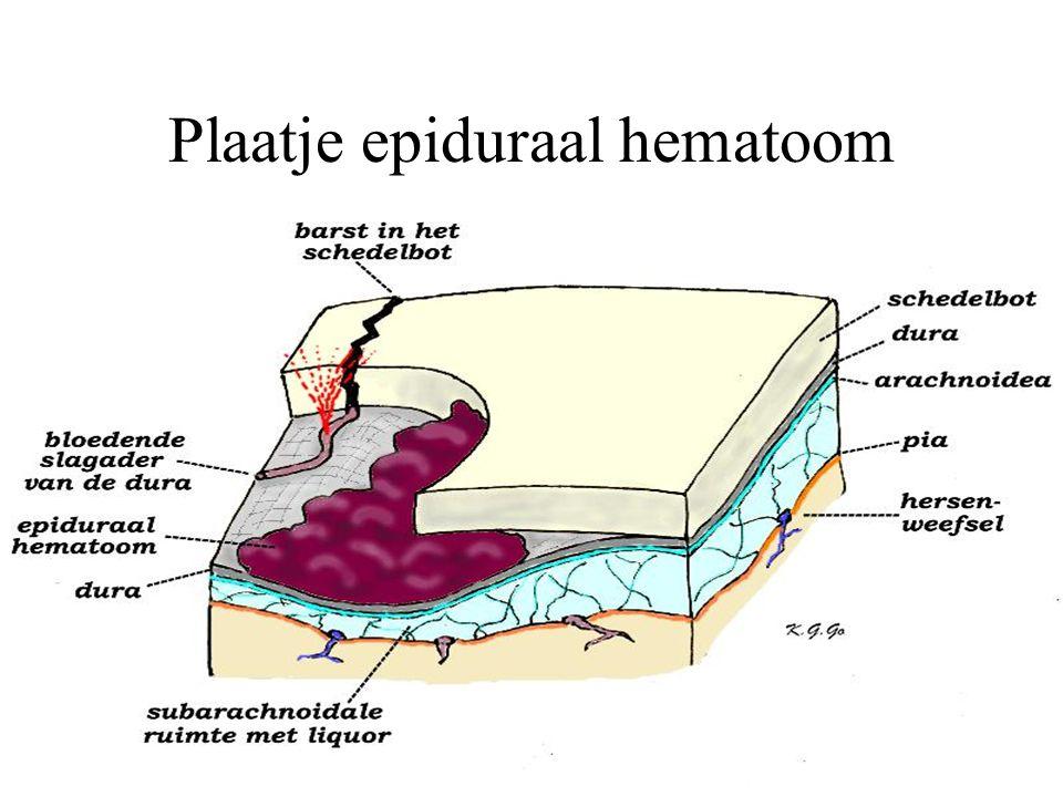 Plaatje epiduraal hematoom