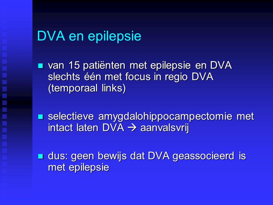 DVA en epilepsie van 15 patiënten met epilepsie en DVA slechts één met focus in regio DVA (temporaal links)