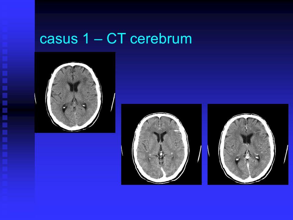 casus 1 – CT cerebrum