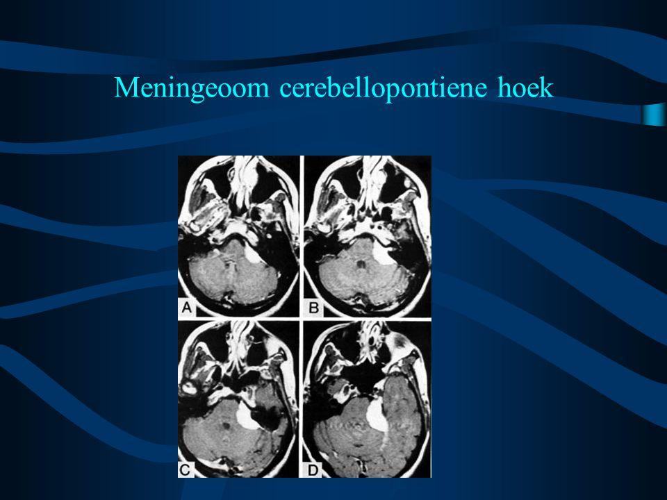 Meningeoom cerebellopontiene hoek