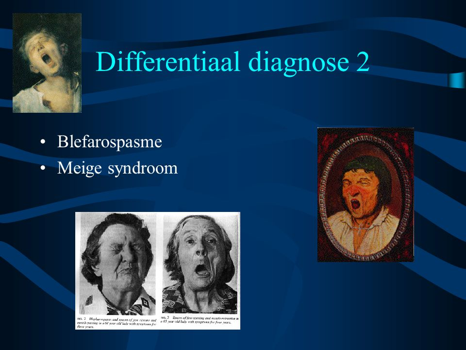 Differentiaal diagnose 2