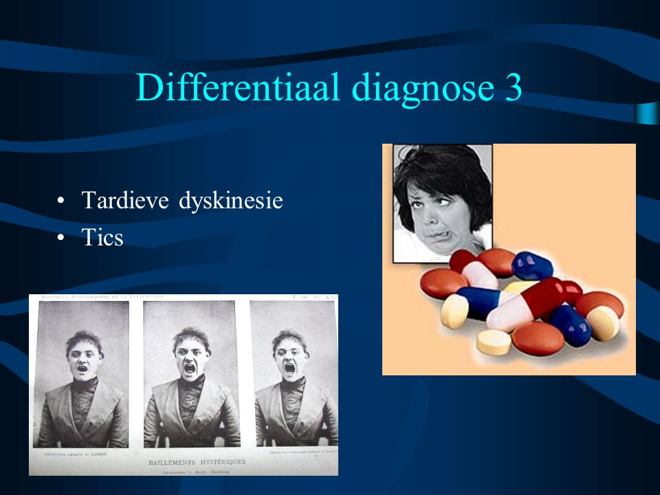 Differentiaal diagnose 3