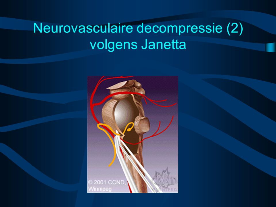 Neurovasculaire decompressie (2) volgens Janetta