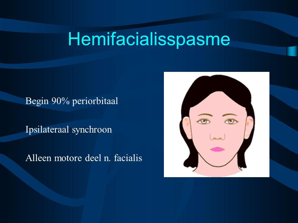 Hemifacialisspasme Begin 90% periorbitaal Ipsilateraal synchroon