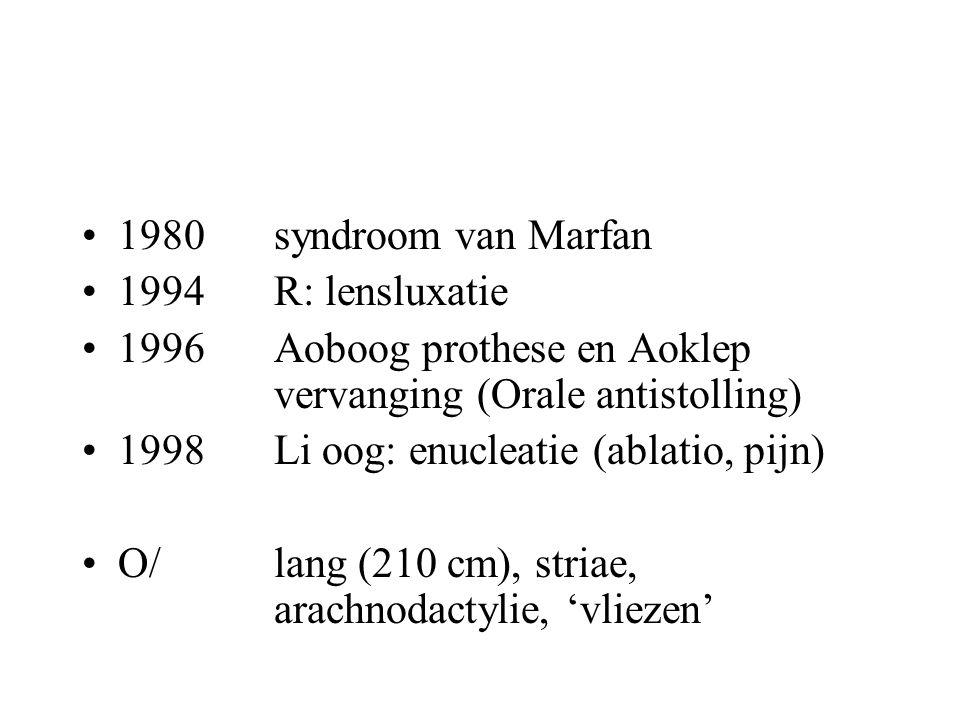 1980 syndroom van Marfan 1994 R: lensluxatie. 1996 Aoboog prothese en Aoklep vervanging (Orale antistolling)