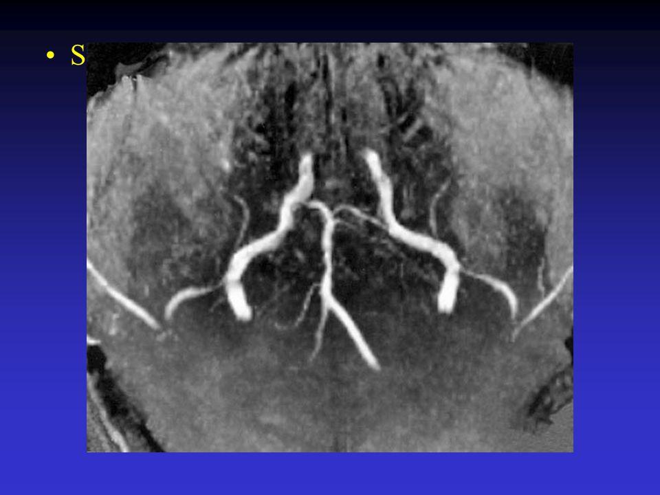 Sterfte na basilaris trombose