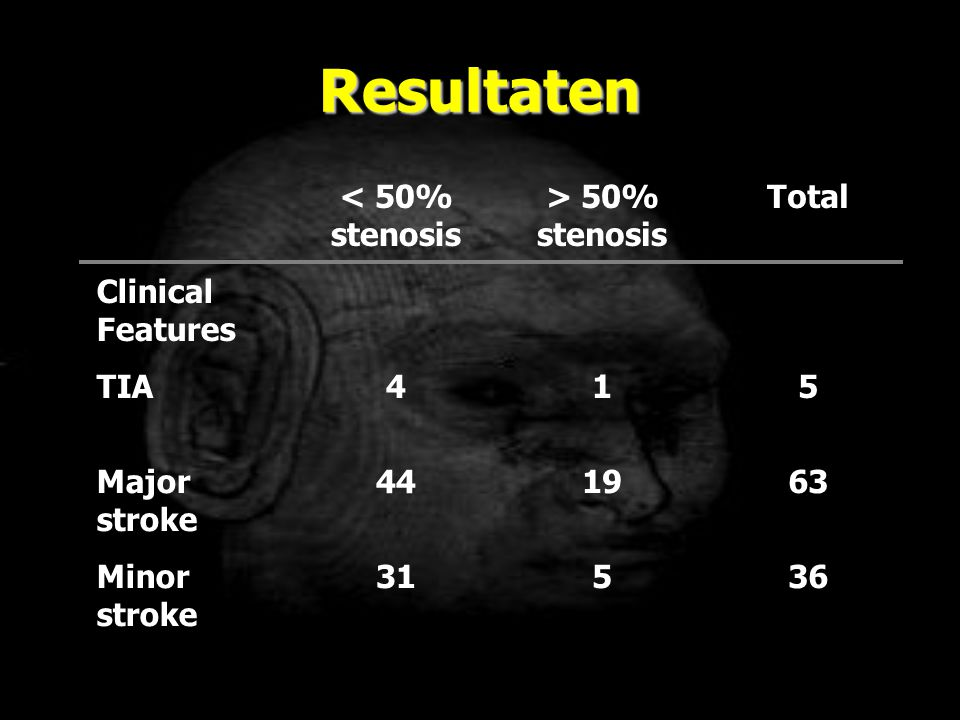 Resultaten < 50% stenosis > 50% stenosis Total Clinical Features