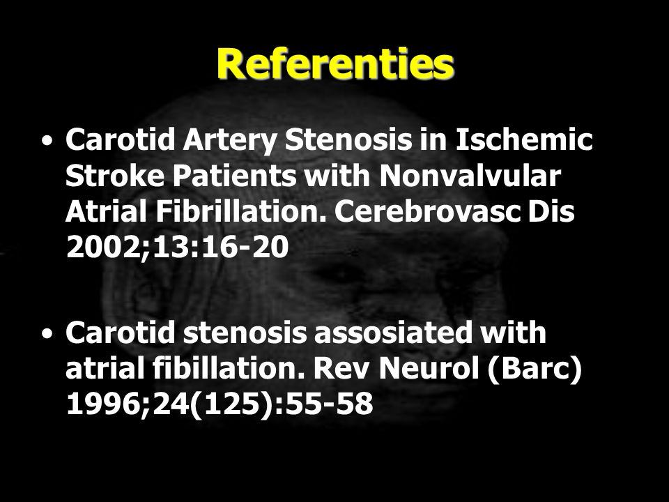 Referenties Carotid Artery Stenosis in Ischemic Stroke Patients with Nonvalvular Atrial Fibrillation. Cerebrovasc Dis 2002;13:16-20.