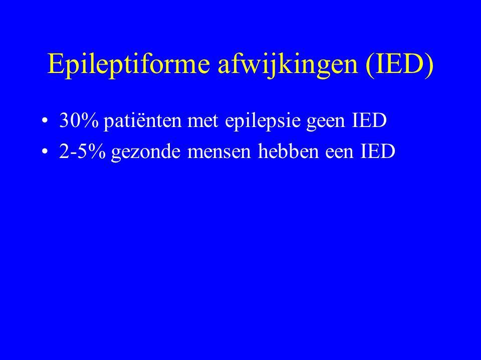 Epileptiforme afwijkingen (IED)