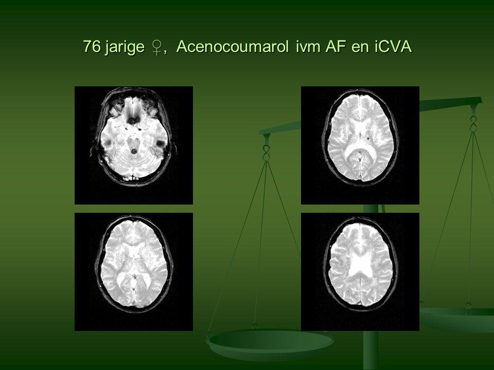 76 jarige ♀, Acenocoumarol ivm AF en iCVA