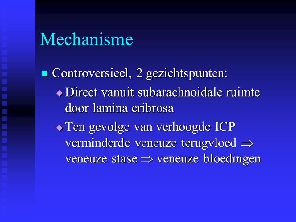 Mechanisme Controversieel, 2 gezichtspunten: