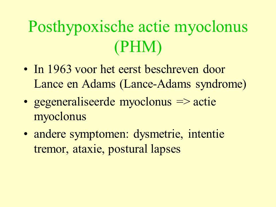 Posthypoxische actie myoclonus (PHM)