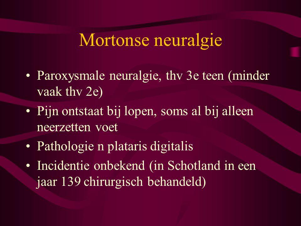 Mortonse neuralgie Paroxysmale neuralgie, thv 3e teen (minder vaak thv 2e) Pijn ontstaat bij lopen, soms al bij alleen neerzetten voet.