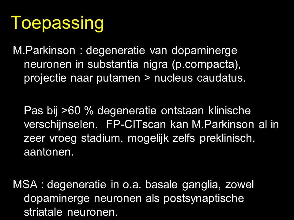 Toepassing M.Parkinson : degeneratie van dopaminerge neuronen in substantia nigra (p.compacta), projectie naar putamen > nucleus caudatus.