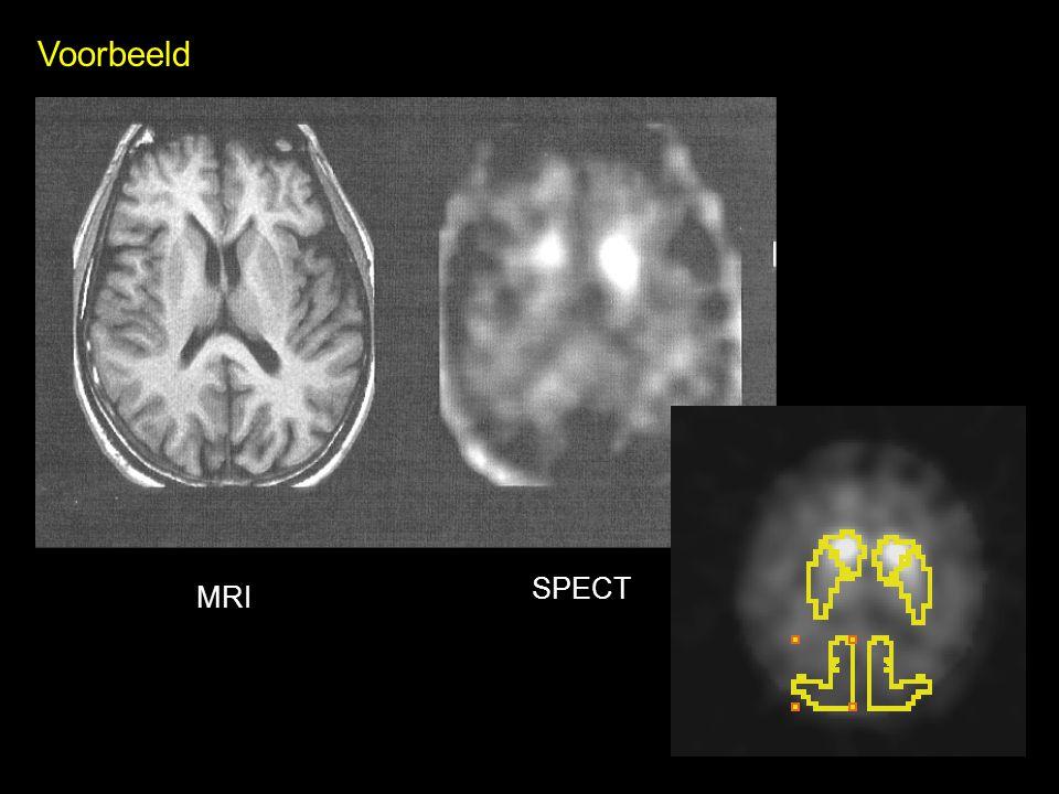 Voorbeeld SPECT MRI