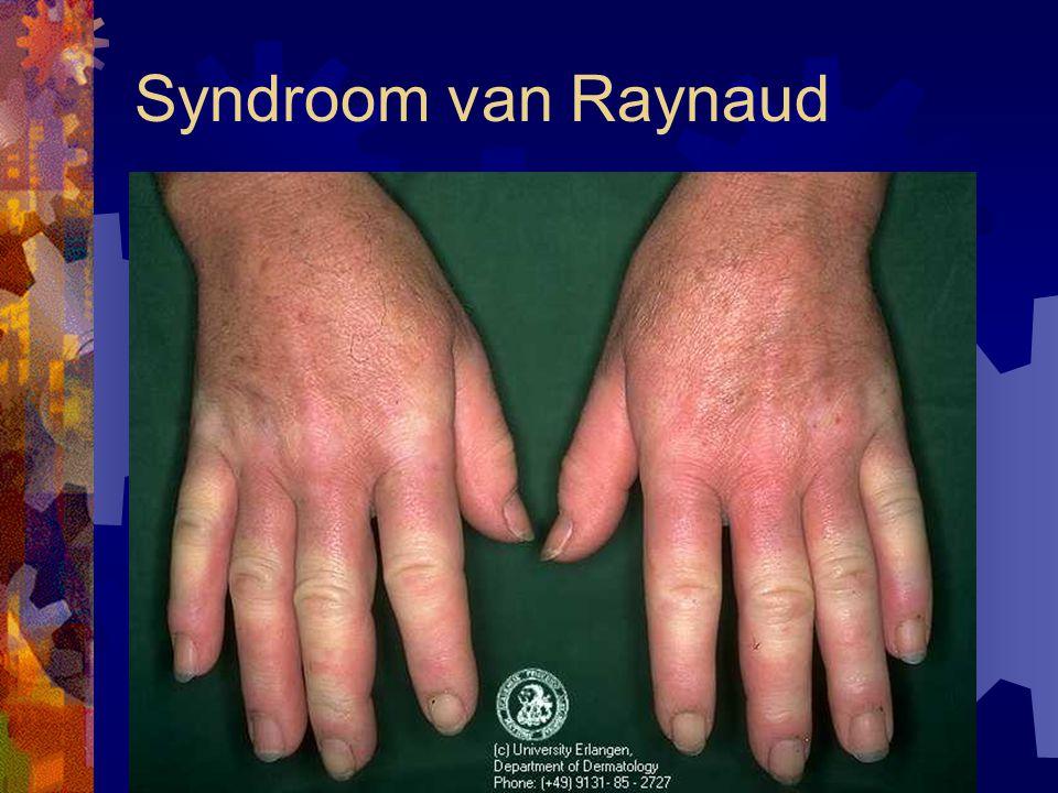 Syndroom van Raynaud