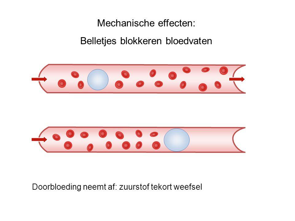 Mechanische effecten: Belletjes blokkeren bloedvaten