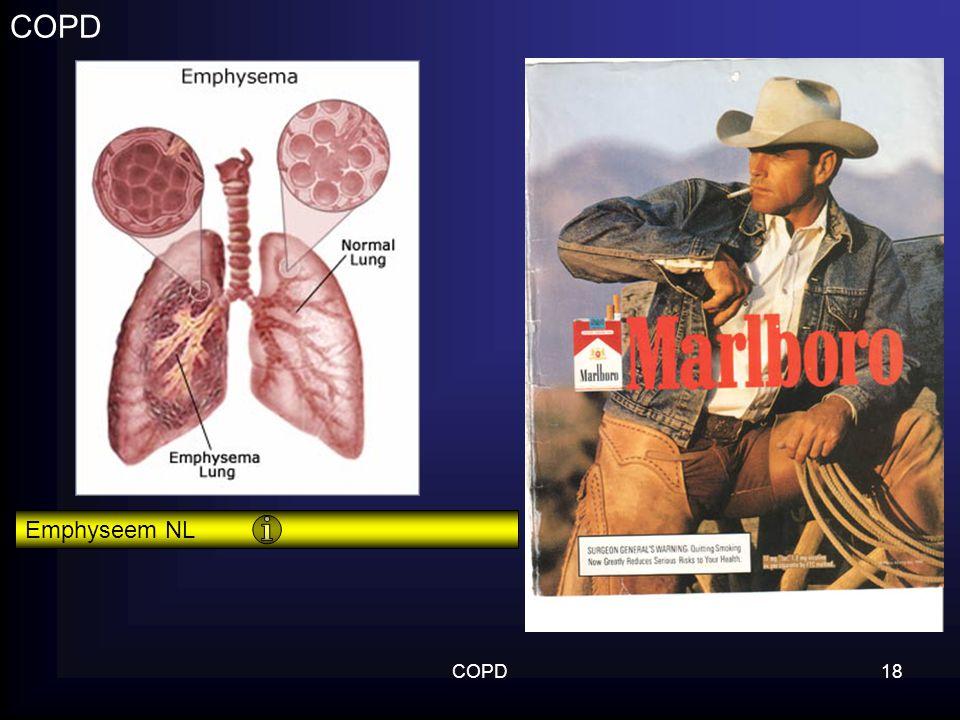 COPD Emphyseem NL COPD