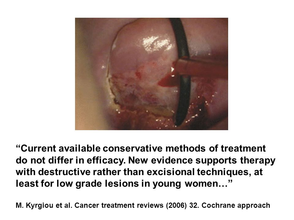 Current available conservative methods of treatment