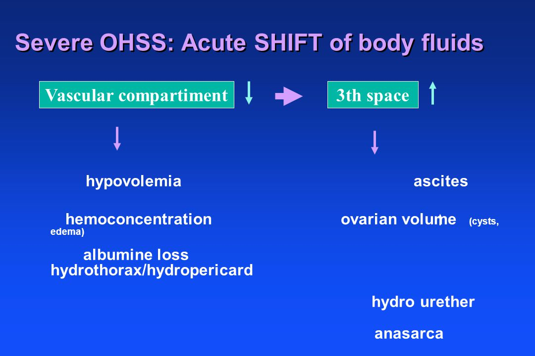 Severe OHSS: Acute SHIFT of body fluids