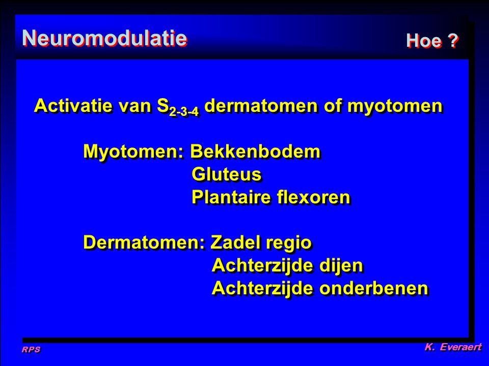 Neuromodulatie Hoe Activatie van S2-3-4 dermatomen of myotomen