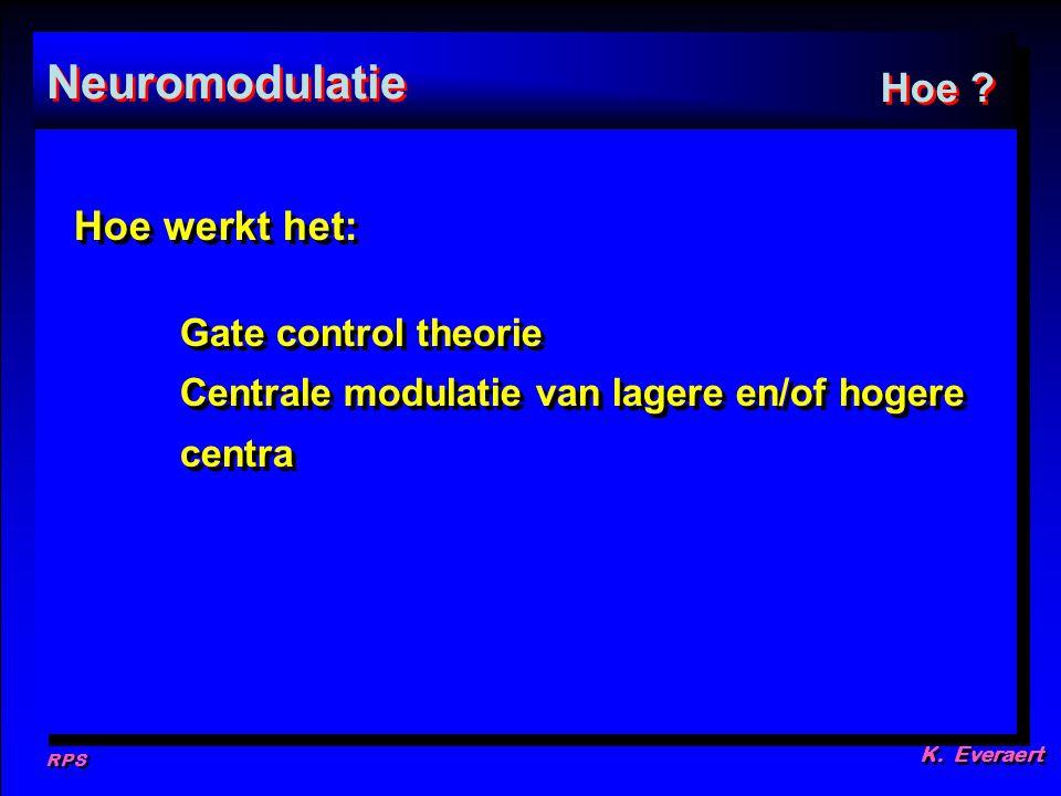 Neuromodulatie Hoe Hoe werkt het: Gate control theorie