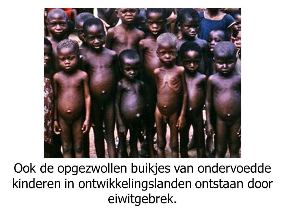 Ook de opgezwollen buikjes van ondervoedde kinderen in ontwikkelingslanden ontstaan door eiwitgebrek.