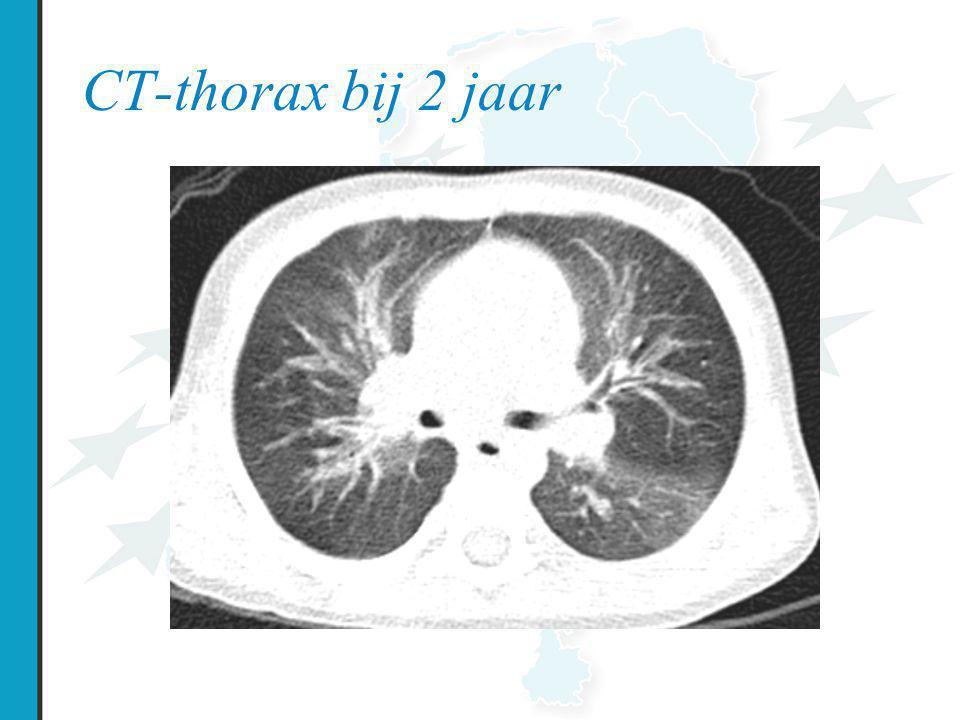 CT-thorax bij 2 jaar