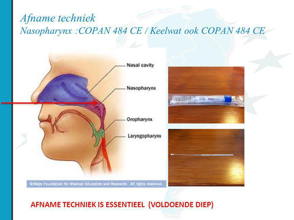 Afname techniek Nasopharynx :COPAN 484 CE / Keelwat ook COPAN 484 CE