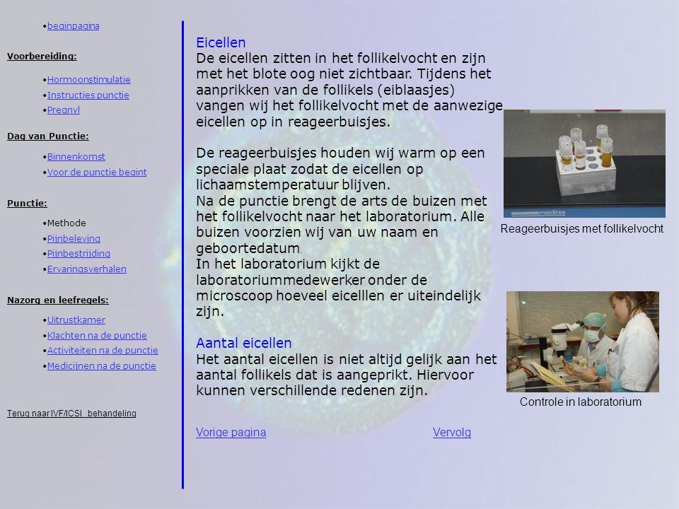 beginpagina Eicellen.